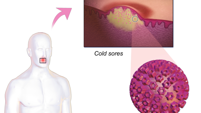 מנגנון ההדבקה של וירוס ההרפס