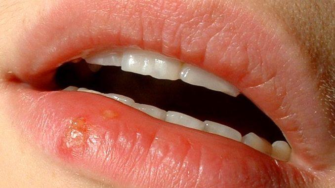 שלפוחית הרפס על השפתיים